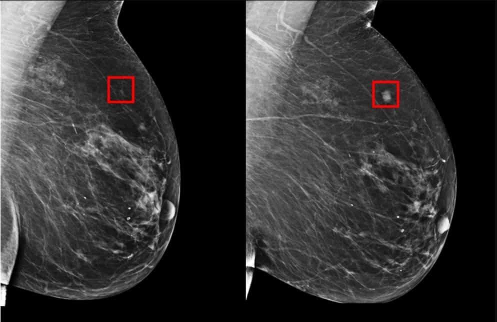 Photo of Ferramenta prevê o câncer de mama até 5 anos antes
